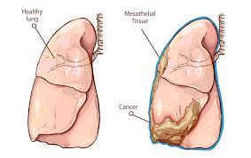 Asbestos, Mesothelioma, Lung Cancer